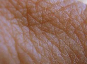wrinkle 300x224 Почему появляются морщины?