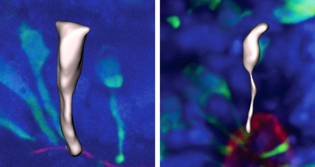 Всего через 5 дней клетки-предшественники нейронов горилл созрели и приобрели коническую форму (справа), в то время как клетки человека (слева) остались цилиндрическими