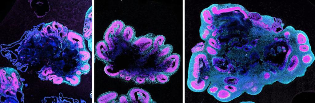 Слева направо: органоиды мозга шимпанзе, гориллы, человека (5 недель)