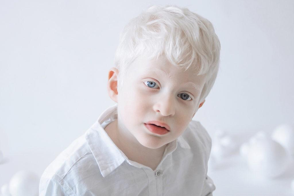 У альбиносов полностью или частично отсутствует пигмент меланин