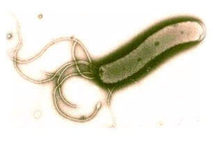 Бактерия – Хеликобактор