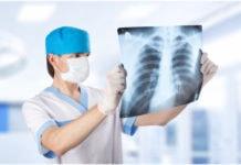 Как делают рентген?