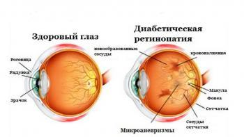 Поражения глаз при диабете