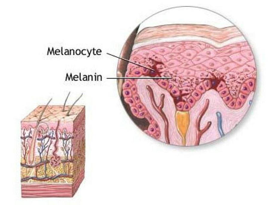 Меланоцит и меланин