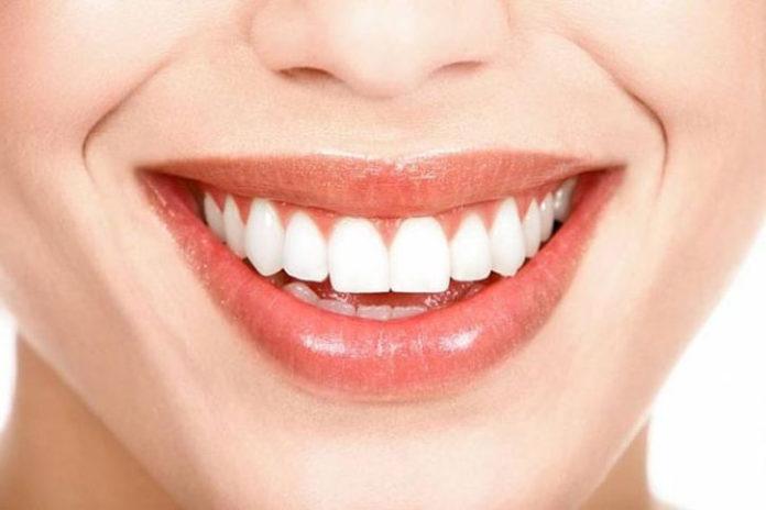 Почему нужно регулярно отбеливать зубы?