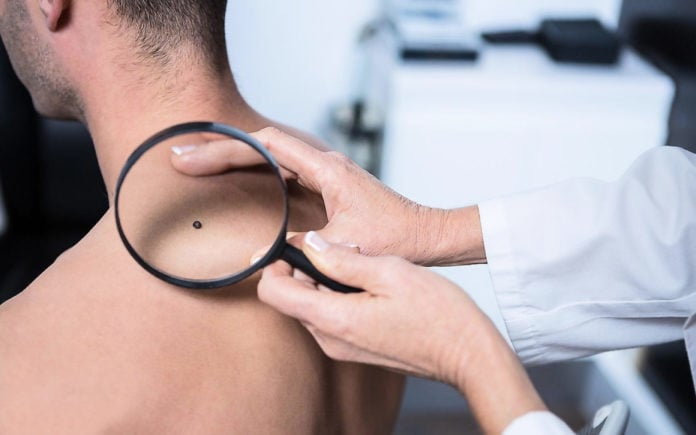 Причины рака кожи