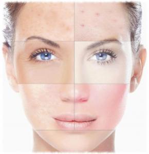 Почему возникает пигментация кожи?