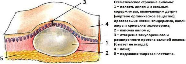 Схема строения жировика (липомы)