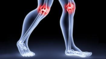 Почему болят суставы?