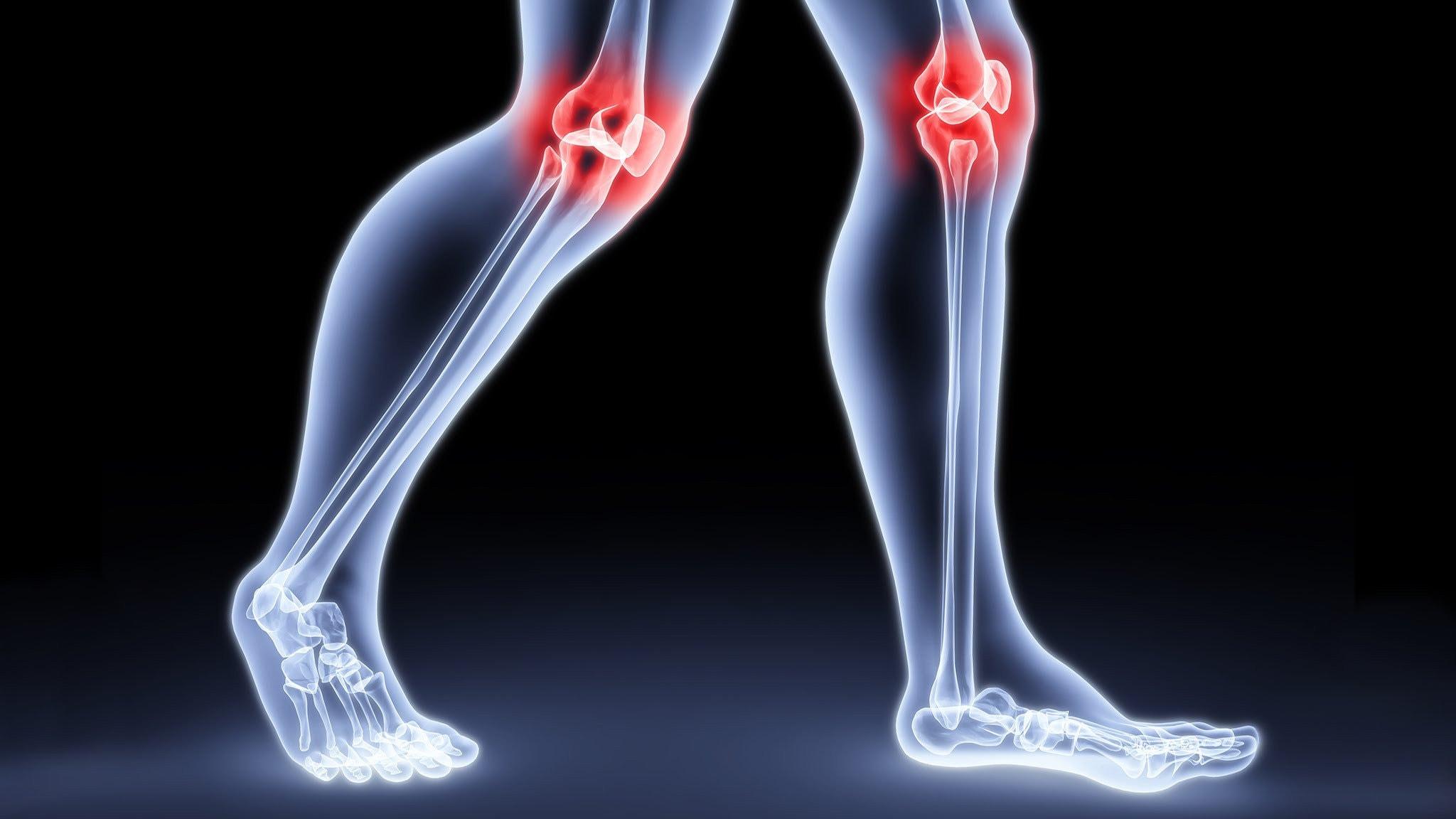 Когда болят суставы ног медицина, статьи костно-суставной туберкулез и его реабилитация