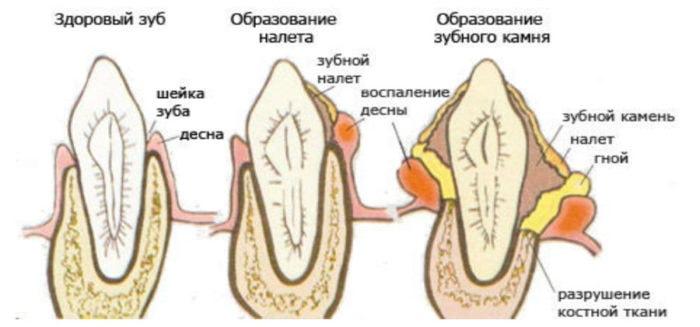 Зубной налет: виды, причины появления
